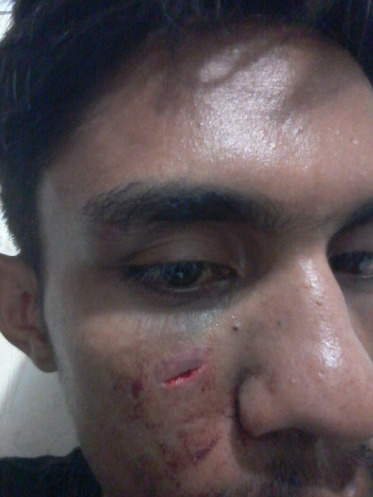 Salah satu korban pembubaran aksi hari Sumpah Pemuda, di Jl. Urip Sumoharjo, Makassar, Senin (29/10/2018)