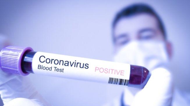 Balik dari China, WNI Diduga Terinfeksi Virus Corona