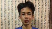Pelaku penusukan Syekh Ali Jaber. (Istimewa)